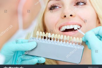 stock-photo-closeup-of-a-girl-with-beautiful-smile-at-the-dentist-dental-539034556