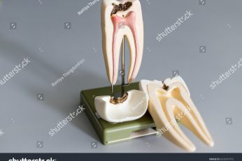 stock-photo-tooth-model-for-education-in-laboratory-623291072