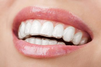 Orthodontic and teeth Realignment (InvisalignClearCorrect)