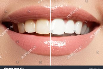 stock-photo-perfect-smile-before-and-after-bleaching-dental-care-and-whitening-teeth-308947793